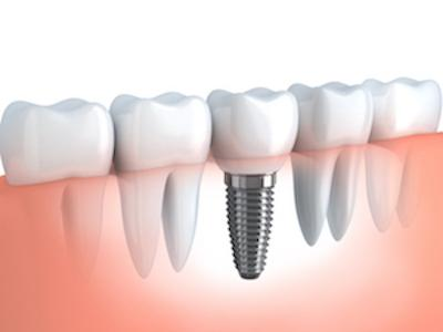Dental Implant Graphic | Portland OR