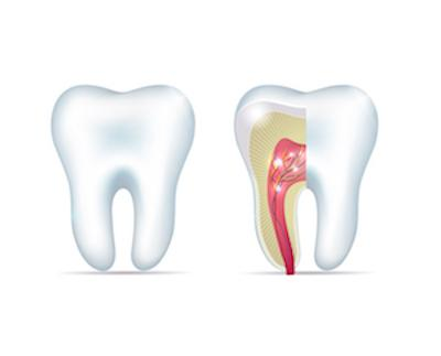 Root Canal Diagram | Portland OR